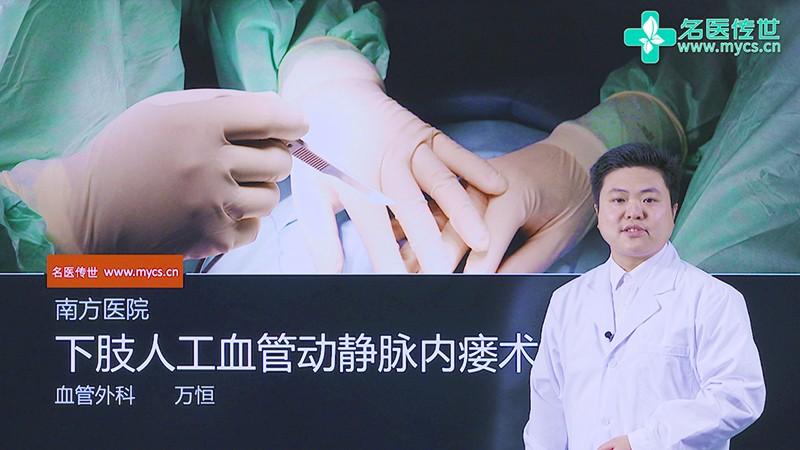 万恒:下肢人工血管动静脉內瘘术(第1P-总2P)