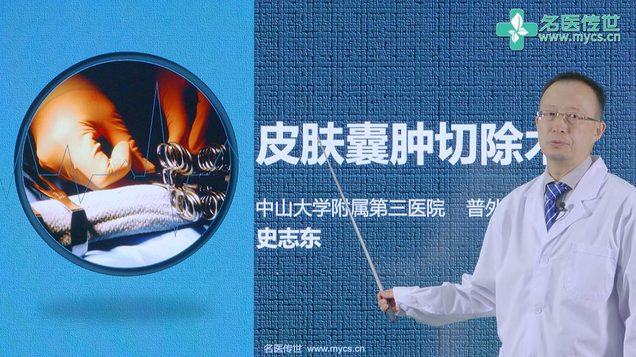 史志东:皮肤囊肿切除术(第2P-总2P)