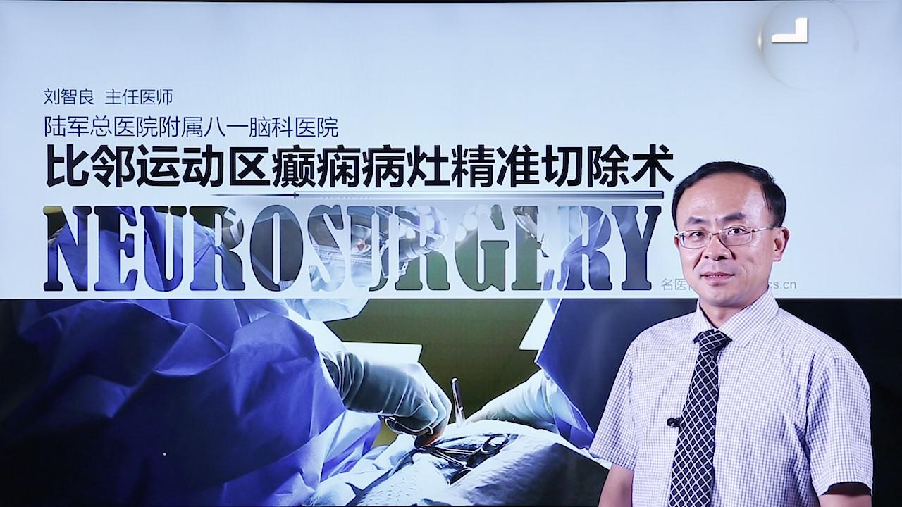 刘智良:比邻运动区癫痫病灶精准切除术(第2P-总2P)