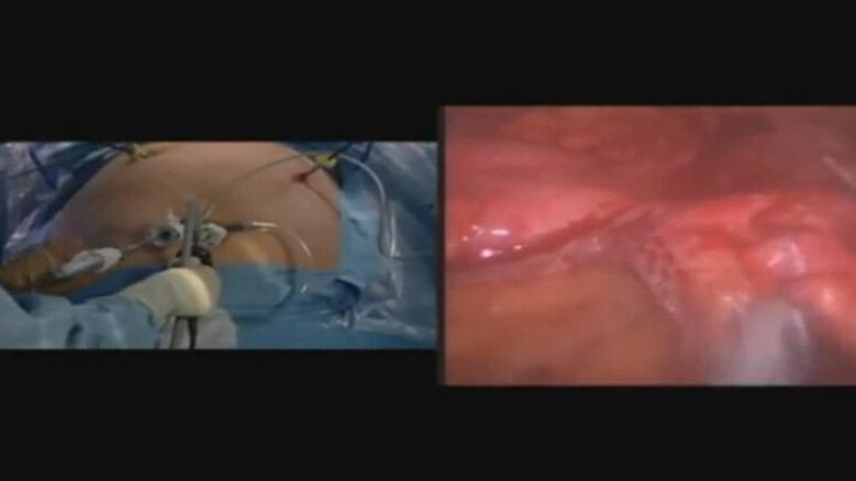 博士:斯科特和莫拉莱斯 - 腹腔镜胃袖状切除术