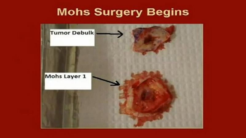 手术视频护身符头皮鳞状细胞癌