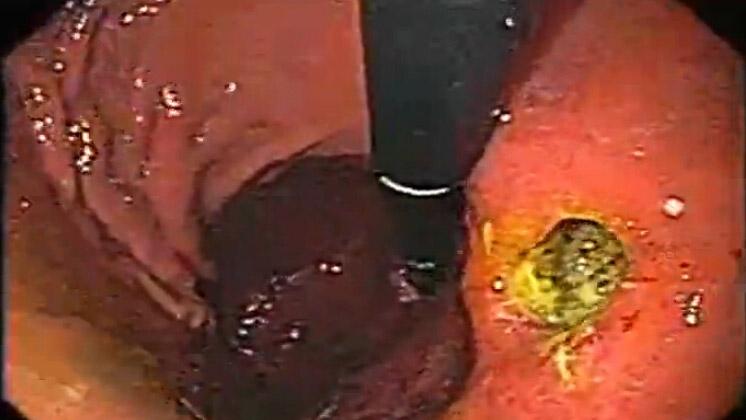 一个深胃溃疡的高分辨率视频内窥镜