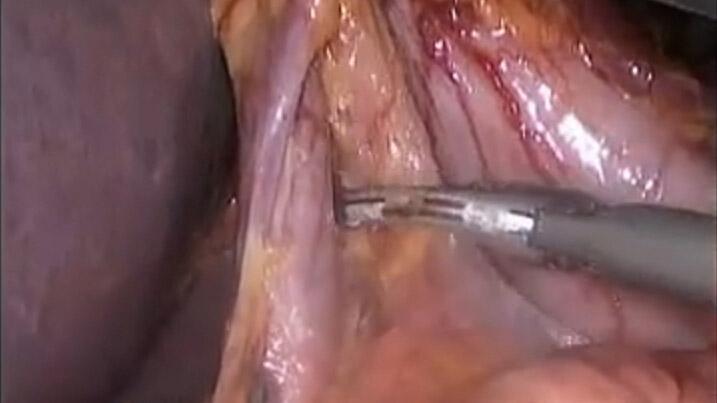 腹腔镜毕2式胃大部分切除术