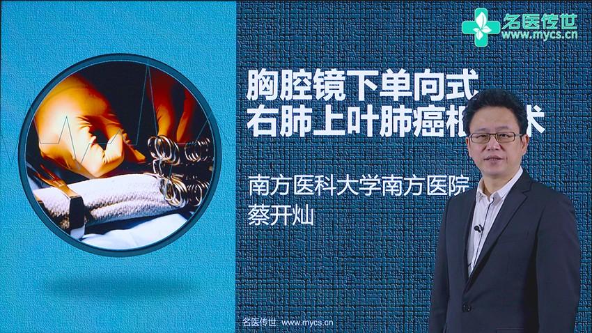 蔡开灿:胸腔镜下单向式右肺上叶肺癌根治术