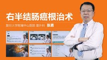 张勇:右半结肠癌根治术