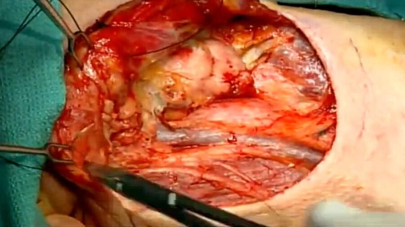 谢尔博士 - 右颈淋巴清扫术