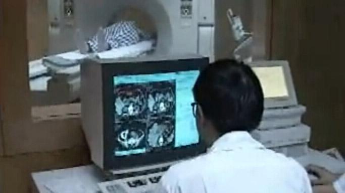 放射线诊断-消化系统疾病的X线诊断(上)