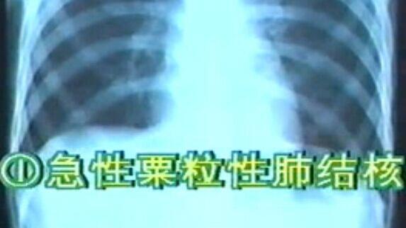 呼吸系统X线诊断