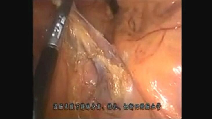 腹腔镜结肠切除术