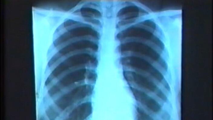 放射线诊断-循环系统X线诊断