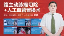 张红:腹主动脉瘤切除+人工血管置换术