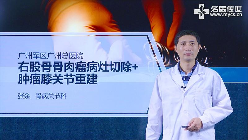 张余:右股骨骨肉瘤病灶切除+肿瘤膝关节重建(第2P-总2P)