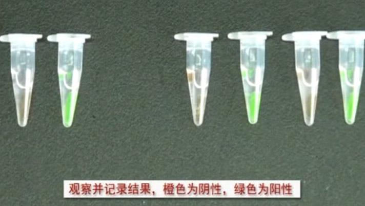 环介导恒温核酸扩增检测痰样中的结核分枝杆菌3