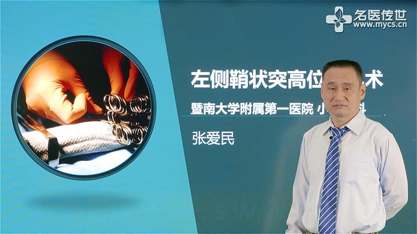 张爱民:左侧鞘状突高位结扎术