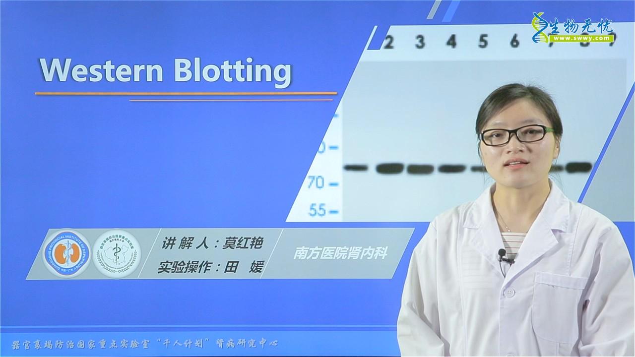 莫红艳:Western Blotting