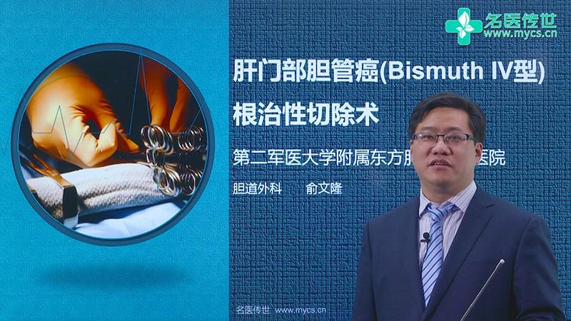 俞文隆:肝门部胆管癌(Bismuth IV型)根治性切除术