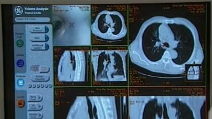 呼吸系统疾病的CT诊断(一)
