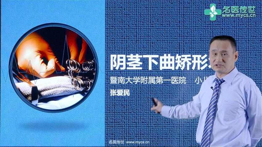 张爱民:阴茎下曲矫形术(第1P-总2P)