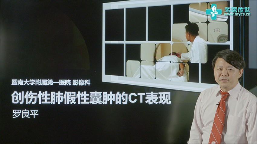 罗良平:创伤性肺假性囊肿的CT表现