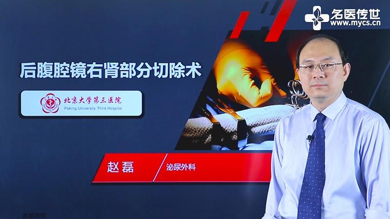 赵磊:后腹腔镜右肾部分切除术