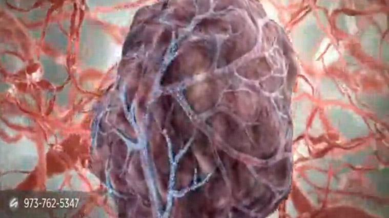 微球治疗肝癌视频
