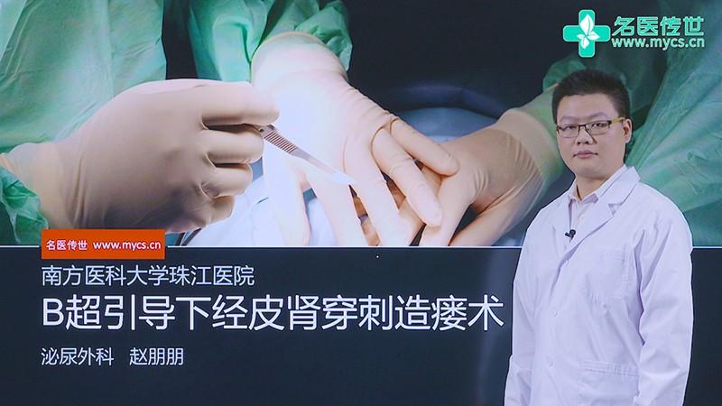 赵朋朋:B超引导下经皮肾穿刺造瘘术