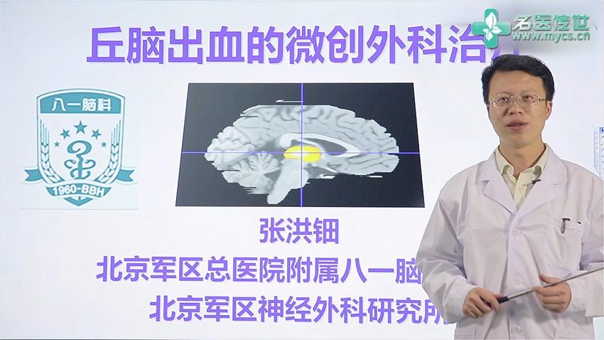 张洪钿:丘脑出血的微创外科治疗(第1P-总2P)