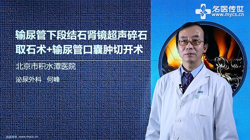 何峰:输尿管下段结石肾镜超声碎石取石术+输尿管口囊肿切开术
