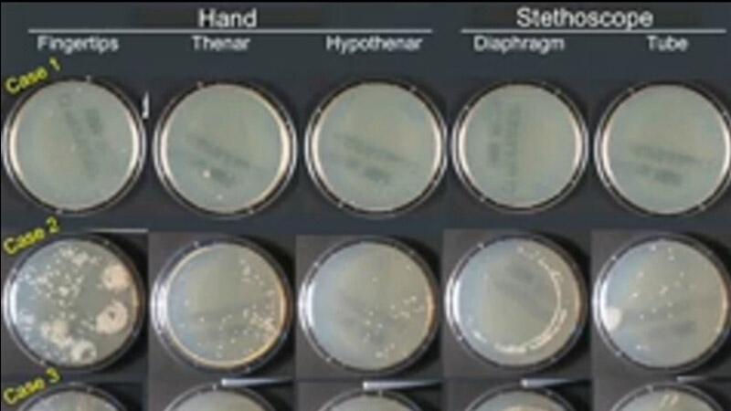 医生听诊器的细菌污染比他们的手掌带菌情况更严重