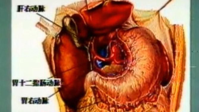 肝动脉结扎及栓塞术