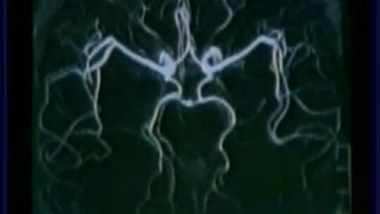 放射线诊断-中枢神经系统疾病影像诊断
