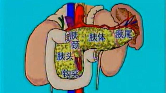 胰十二指肠切除术