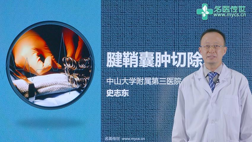 史志东:腱鞘囊肿切除术(第1P-总2P)