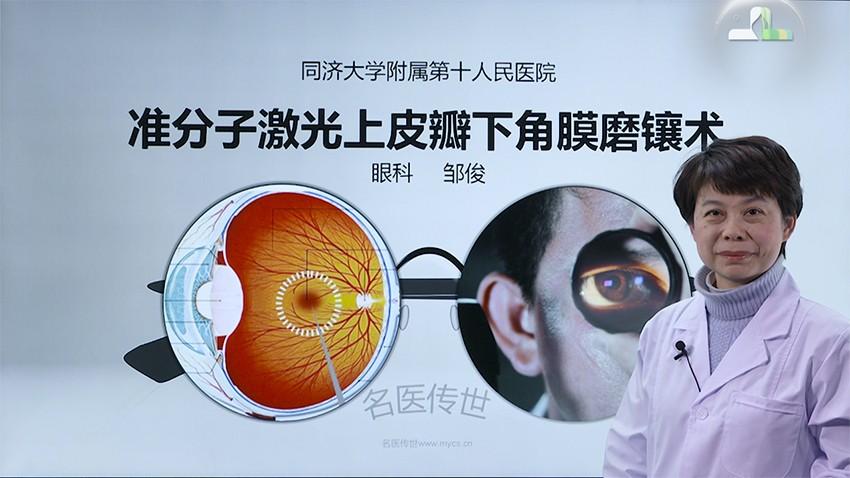 邹俊:准分子激光上皮瓣下角膜磨镶术