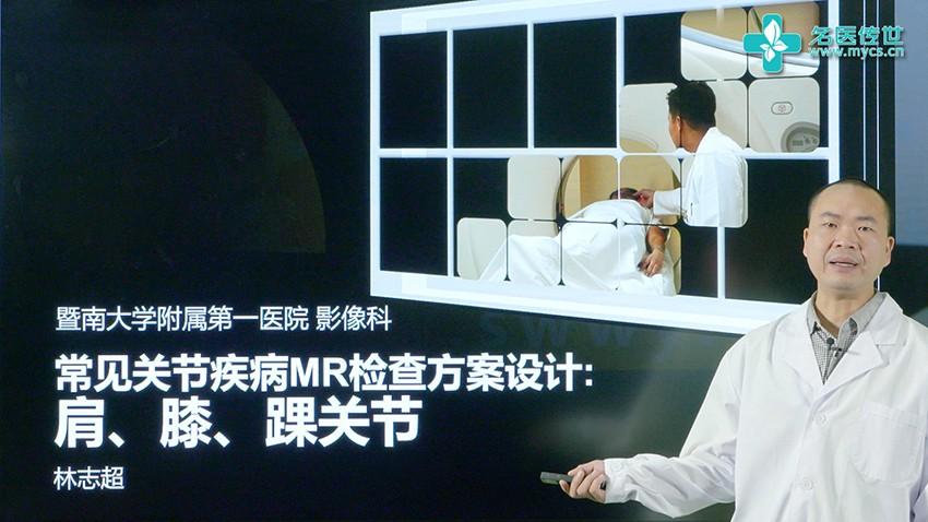 林志超:常见关节疾病MR检查方案设计:肩、膝、踝关节