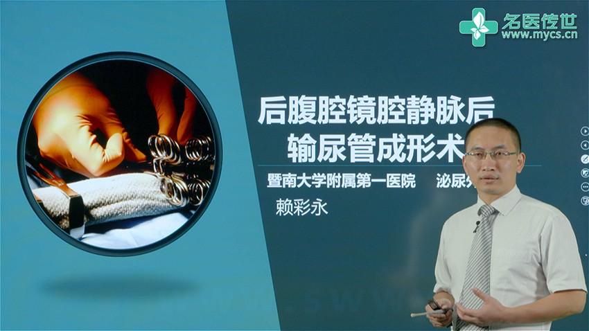 赖彩永:后腹腔镜腔静脉后输尿管成形术(第1P-总2P)