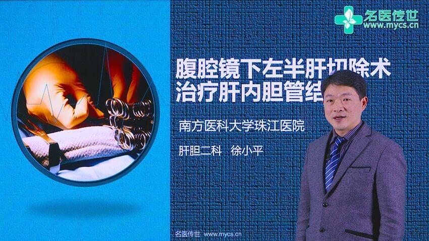 徐小平:腹腔镜下左半肝切除术治疗肝内胆管结石
