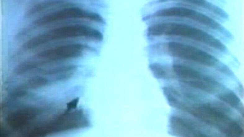 呼吸系统正常和病变的X线表现