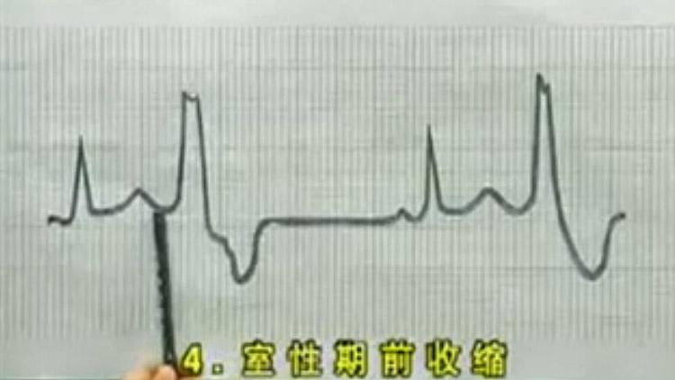 心电图教学视频