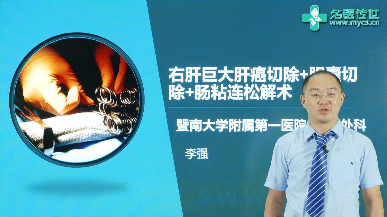 李强:右肝巨大肝癌切除+胆囊切除+肠粘连松解术(第1P-总2P)