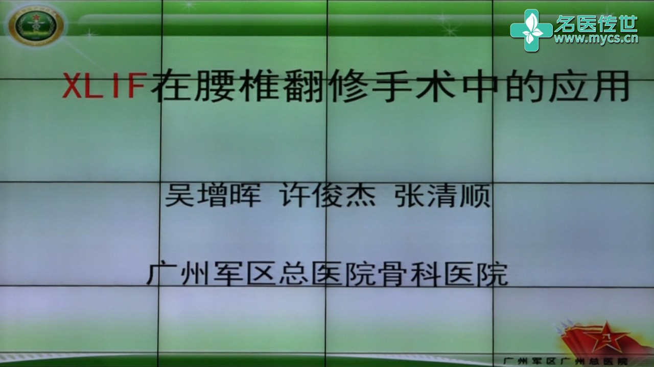 吴增晖:XLIF在腰椎翻修手术中的应用