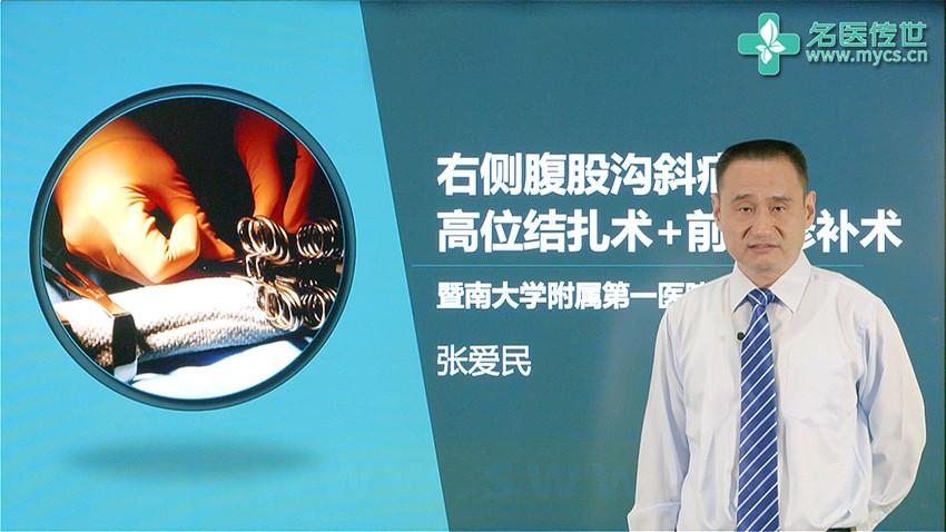 张爱民:右侧腹股沟斜疝高位结扎术+前壁修补术(第1P-总2P)