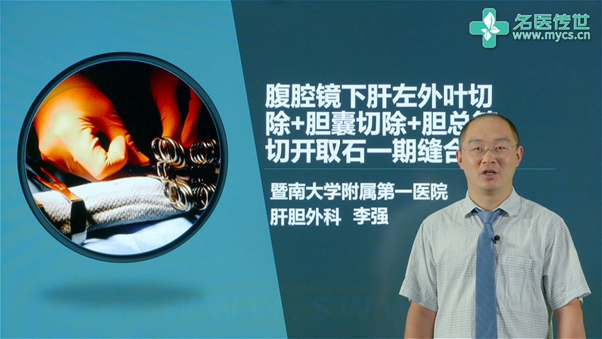 李强:腹腔镜下肝左外叶切除+胆囊切除+胆总管切开取石一期缝合(第2P-总2P)