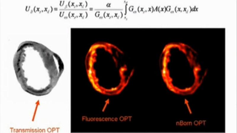 全心脏成像的荧光光像投影摄影术的脑标准化视频