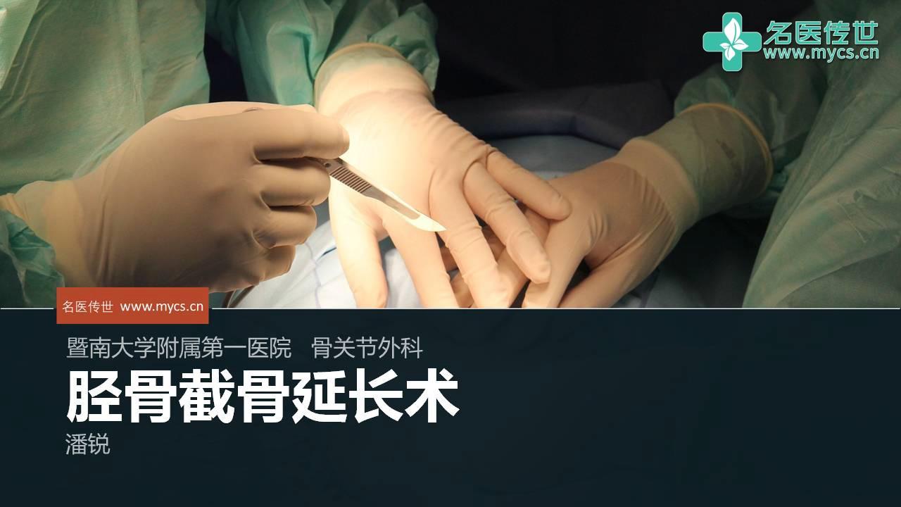 潘锐:胫骨截骨延长术
